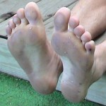 Ken Bob's soles after Bayshore Marathon (2003 May 24) note the tiny blister on the small toe closest to the camera