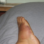 2014 May 31 twisted ankle, bruised foot - may be re-injury of sprain 24 years ago while running down stairs in shoes.