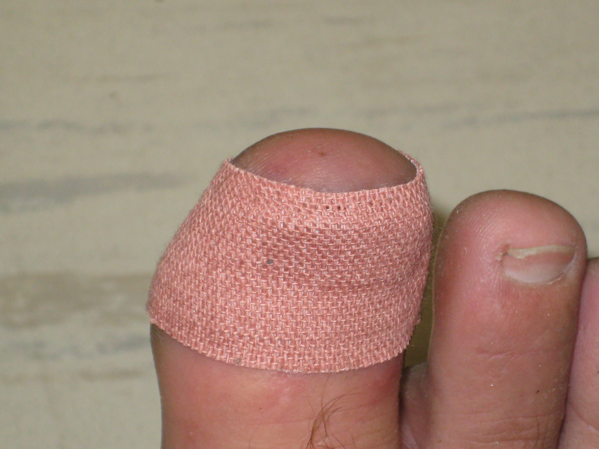 Ken Bob's bandaged stubbed toe (2009 November 4) Long Beach CA