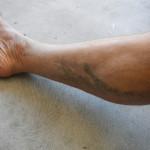 mud on Ken Bob's leg