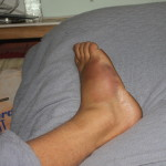 Ken Bob's broken foot - the next day the bruising was a much prettier color.
